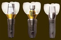 Имплантат зуба